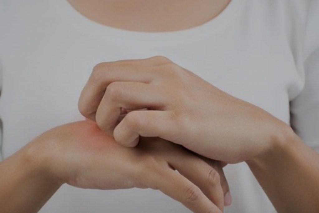 Puede provocar reacciones alérgicas