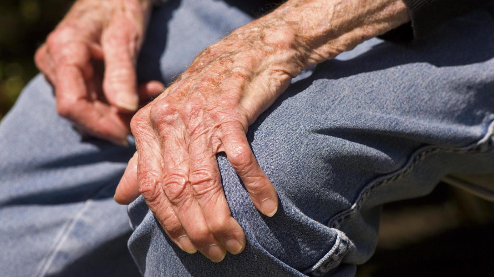 Artrosis en las rodillas