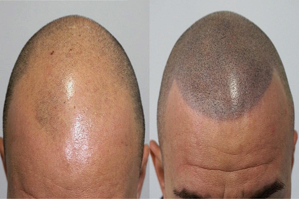 Antes y después de una micropigmentación capilar