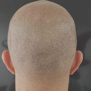 Micropigmentación capilar en un hombre