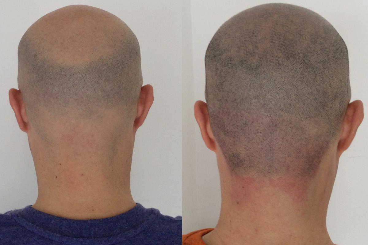 Tratamiento de micropigmentación capilar en hombre